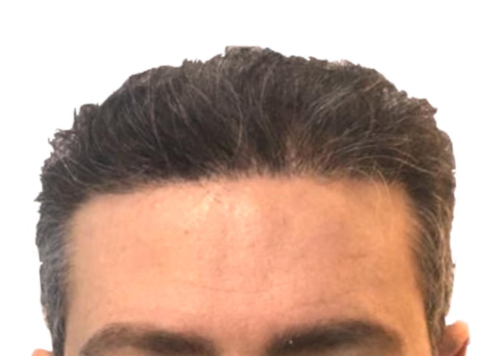 hairbooster_nachher_Klein_Quadrat2