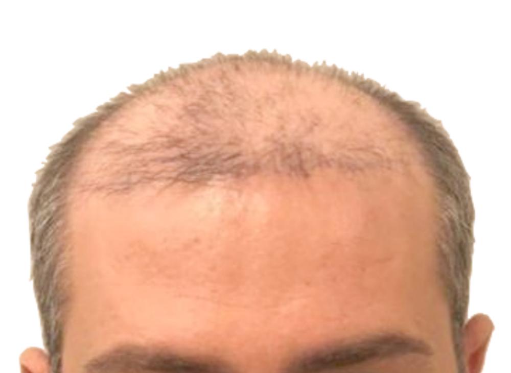 hairbooster_vorher_Klein_Quadrat2